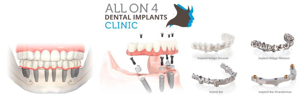 allon4-tower-dentistry